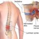 Χειρουργείο Δισκοκήλης: Ρεφλεξολογία για τον πόνο μετά την επέμβαση